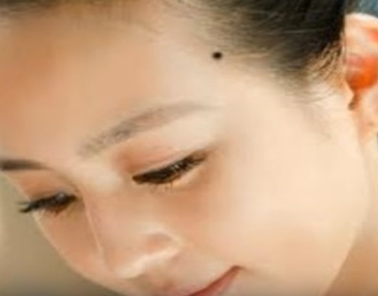body mole on temple forehead