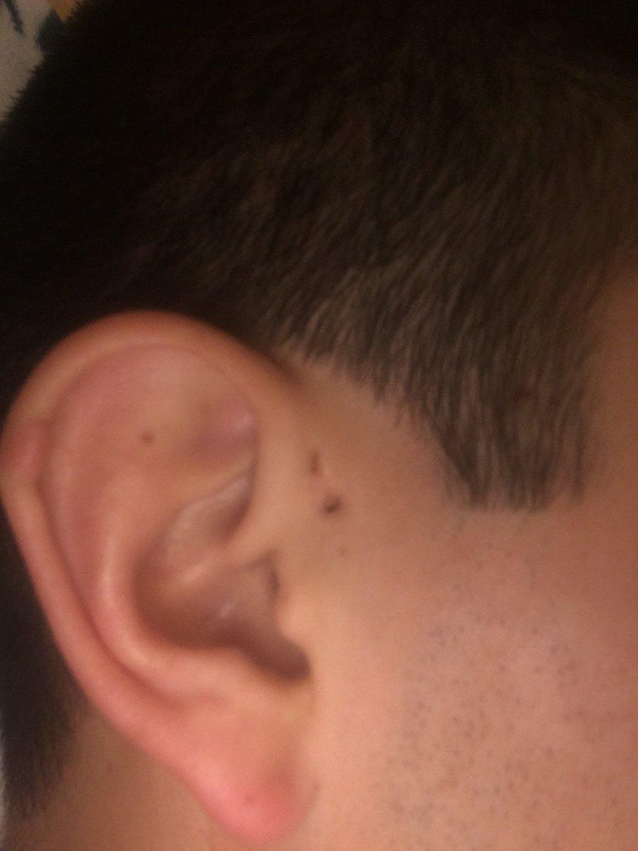 Preauricular Sinus extra hole ears