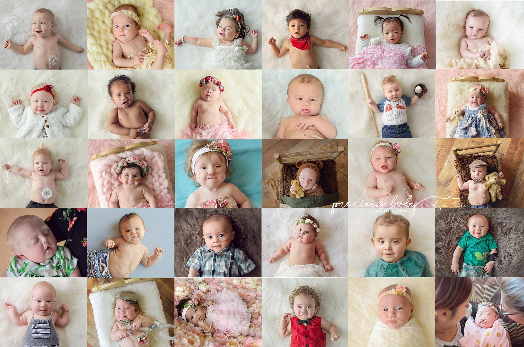 precious babies - Angela Forker Takes Breathtaking Portraits Of Babies With Special Needs